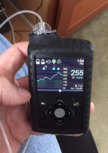 670G Insulin Pump