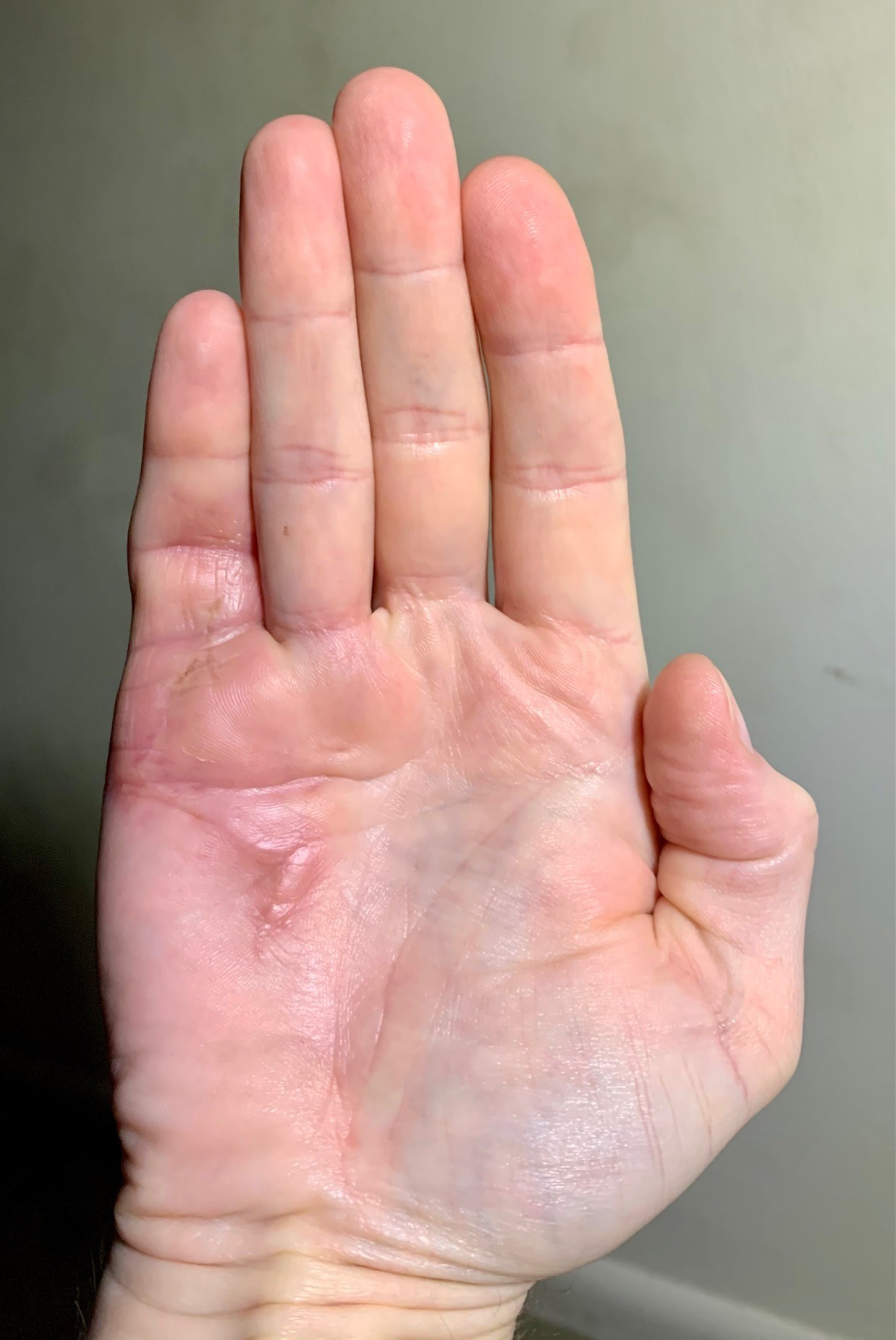 Right hand, five weeks post-surgery